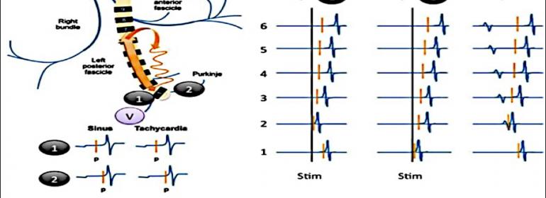 Taquicardias fasciculares: desde la anatomía fascicular hasta la ablación por radiofrecuencia de las taquicardias