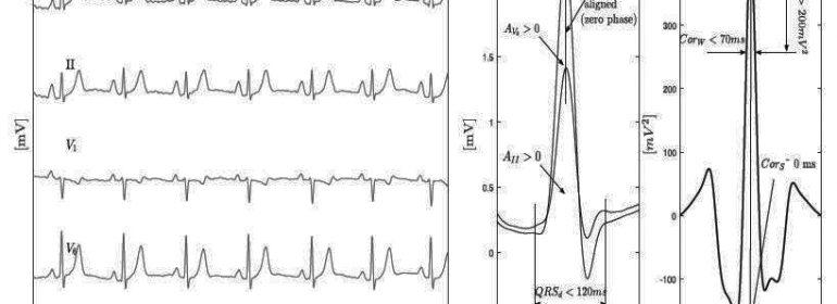 """Disincronía intraventricular y """"desacoplamiento eléctrico"""": ¿un trastorno exclusivo del BCRI?"""