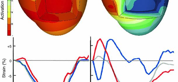 La resincronización ventricular en la insuficiencia cardíaca: selección de los pacientes, metodologías y optimización de dispositivos