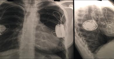 Extracción percutánea en un paciente con diversos tipos de catéteres antiguos