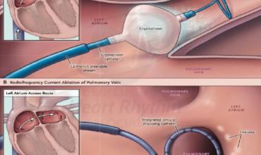 Fibrilación auricular paroxística. Crioablación o ablación por radiofrecuencia