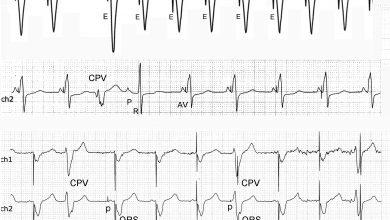 Eventos electrocardiográficos que semejan disfunción de marcapasos
