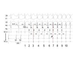 Participación de múltiples vías aurículo-ventriculares en una taquicardia por reentrada nodal