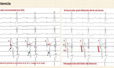 Comportamiento de la latencia de la conducción intrauricular en las taquicardias por reentrada nodal: interés en el diagnóstico diferencial e indicador de éxito del tratamiento
