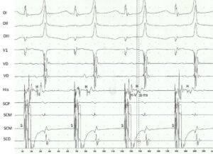 Vías anómalas fasciculoventriculares. Características clínicas y electrofisiológicas de una rara variante de preexcitación